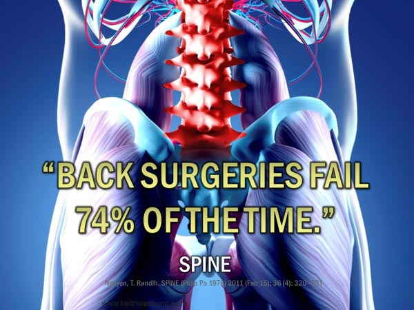 Chiropractic Dallas GA Back Surgeries Fail